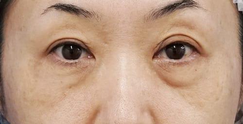 目の下脂肪取り+コンデンス脂肪注入 手術直後、1週間後、1ヶ月後のBefore写真