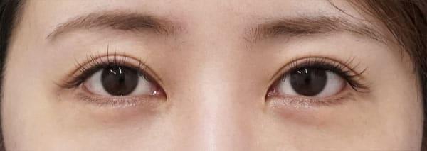 下眼瞼下制(切るタレ目) 1週間後のAfterの写真
