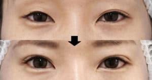 切らない眼瞼下垂、二重埋没法、目尻切開 1ヶ月後、3ヶ月後