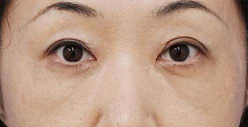 目の下脂肪取り+コンデンス脂肪注入 手術直後、1週間後、1ヶ月後のAfterの写真