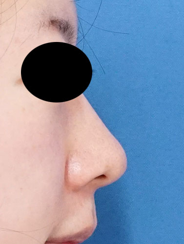 切らない鼻尖延長(MISKO、ミスコ) 2週間後のAfterの写真