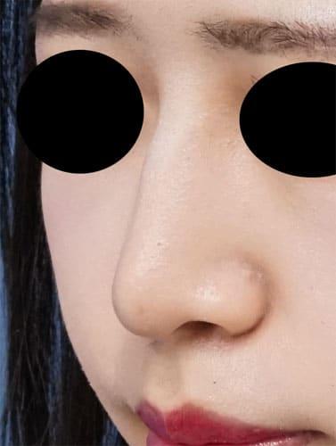 切らない鼻尖延長(MISKO) 1週間後のAfterの写真