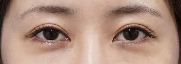 下眼瞼下制(切るタレ目) 1週間後のBefore写真