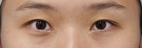 エステティックアイ 手術直後、1週間後、1ヶ月後。閉眼ものBefore写真
