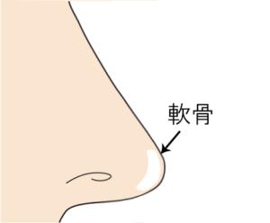 鼻尖軟骨移植