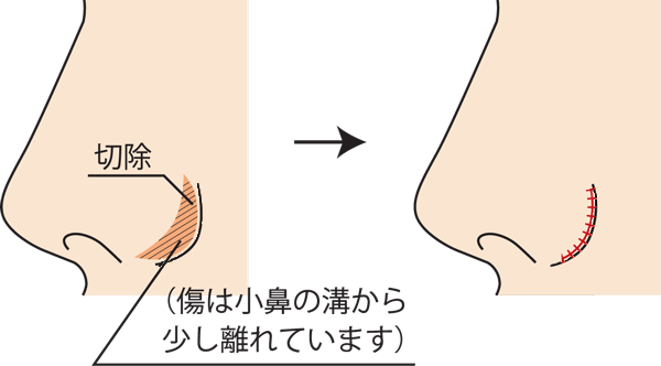 小鼻縮小外側切除方法