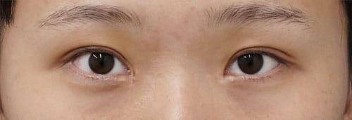 エステティックアイ 手術直後、1週間後、1ヶ月後。閉眼ものAfterの写真