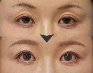 眼瞼下垂手術症例