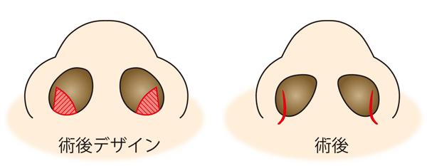 鼻翼縮小(内側法)切開線