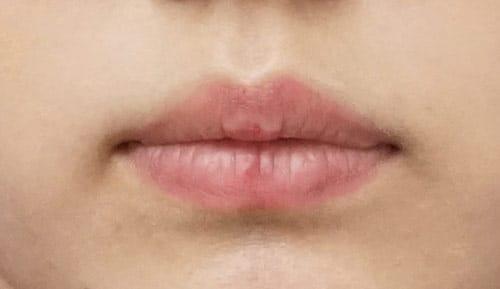 口角を上げるセット 1週間後のBefore写真