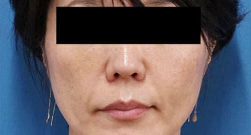 フィラーリフト(中顔面ヒアルロン酸) 1週間後のAfterの写真