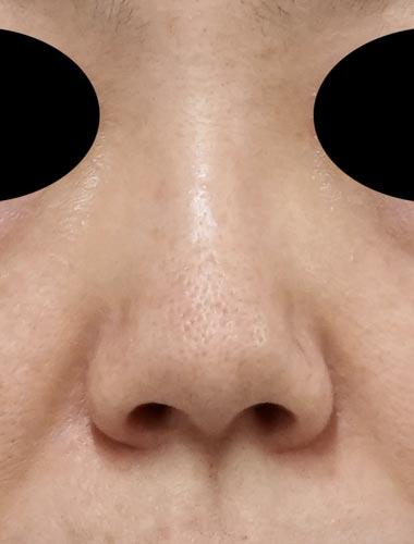 鼻尖縮小、軟骨移植(ストラットも)、プロテーゼ 1ヶ月後のBefore写真