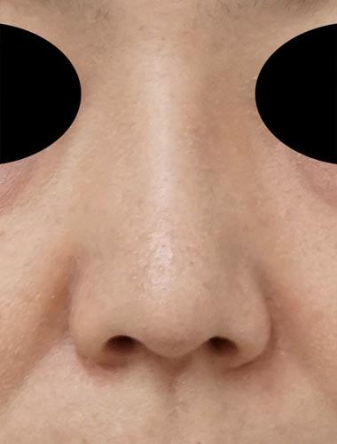 鼻尖縮小、軟骨移植(ストラットも)、プロテーゼ 1ヶ月後のAfterの写真