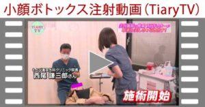 小顔ボトックス注射 TV紹介動画