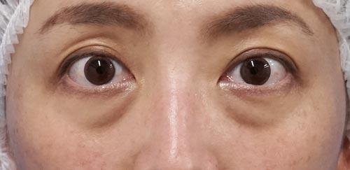 目の下脂肪取り、コンデンス脂肪注入(目の下) 手術直前、1ヶ月後のBefore写真