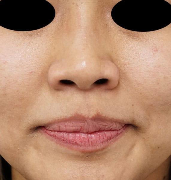 鼻の穴を広げないボトックス 1週間後のBefore写真