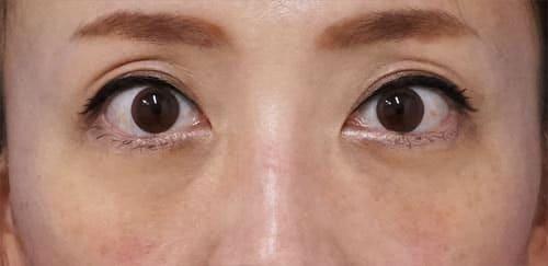 目の下脂肪取り、コンデンス脂肪注入(目の下) 手術直前、1ヶ月後のAfterの写真