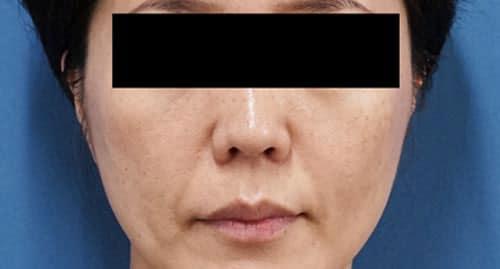 フィラーリフト(中顔面ヒアルロン酸) 1週間後のBefore写真