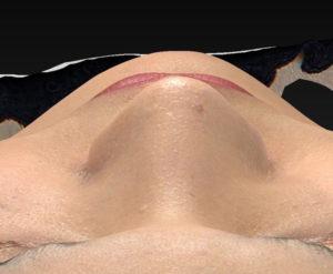 上から3ヶ月後-鼻翼縮小(内側+外側)