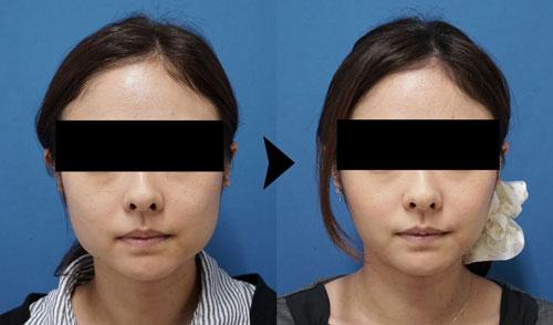 エラボトックス症例写真1