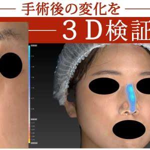 鼻尖縮小、軟骨移植(ストラットも)、プロテーゼ 3ヶ月後 3D解析