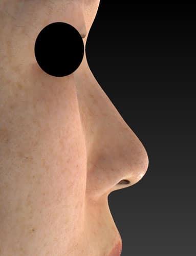 切らない鼻尖延長(MISKO、ミスコ)8本 1週間後のBefore写真
