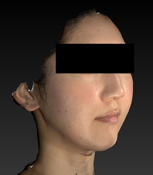 右斜め前6ヶ月後 小顔脂肪吸引(ホホ・あご下・法令線上),