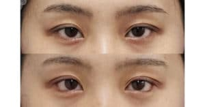 下眼瞼下制(切るタレ目)、目尻切開 1ヶ月後