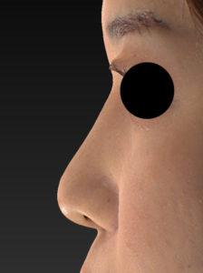 鼻尖縮小、軟骨移植(ストラットも)、プロテーゼ 左側面 3か月後