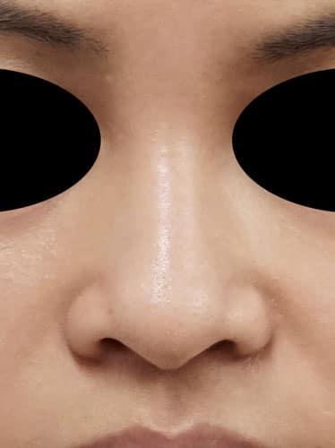 鼻翼縮小(内側法+外側法) 1ヶ月後 のBefore写真