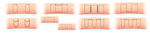 埋没法のいろいろな種類の図