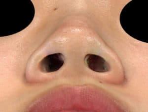 下から術前-鼻翼縮小(内側+外側)