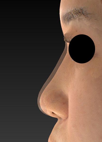 鼻尖縮小、軟骨移植(ストラットも)、プロテーゼ 左側面変化