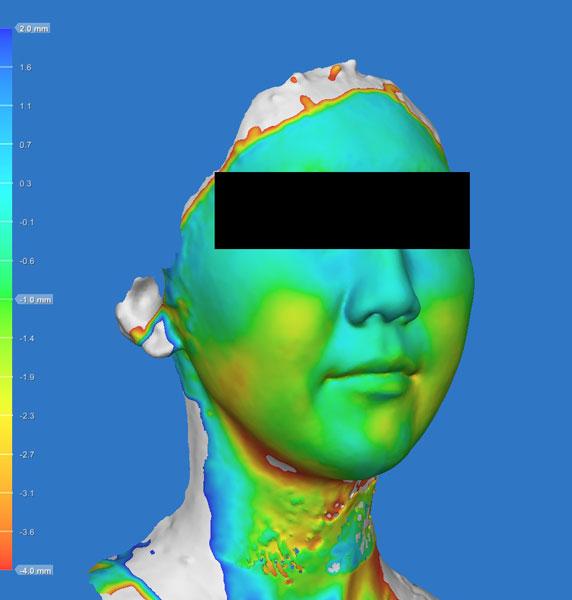 変化の色づけ 小顔脂肪吸引(ホホ・あご下・法令線上),