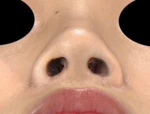 下から3ヶ月後-鼻翼縮小(内側+外側)