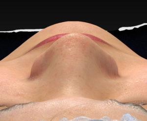 上から術前-鼻翼縮小(内側+外側)