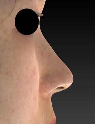 切らない鼻尖延長(MISKO、ミスコ)8本 1週間後のAfterの写真