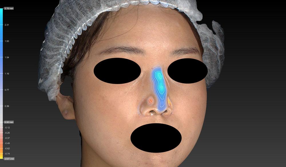 鼻尖縮小、軟骨移植(ストラットも)、プロテーゼ 左斜め3D変化解析