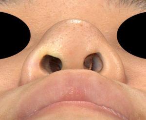 鼻尖縮小、軟骨移植(ストラットも)、プロテーゼ 下から 手術前