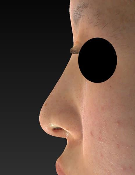 鼻尖縮小、軟骨移植、I型プロテーゼ 1ヶ月後のAfterの写真