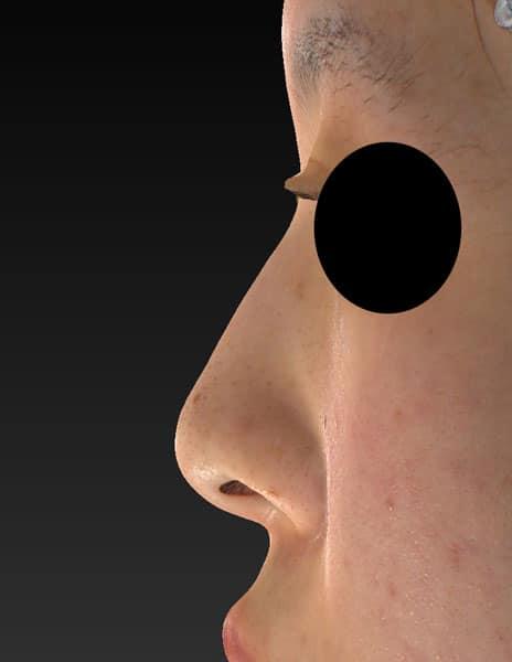 鼻尖縮小、軟骨移植、I型プロテーゼ 1ヶ月後のBefore写真