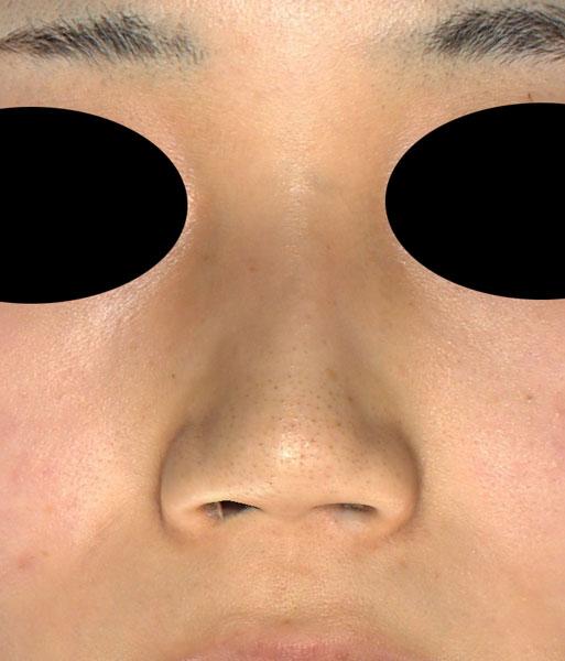 正面 術前 鼻翼縮小(内+外側法)