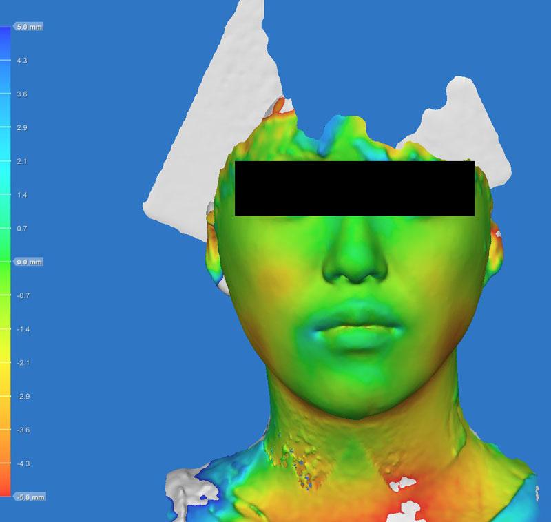 色変化 正面 小顔脂肪吸引(ホホ・あご下・ほうれい線上)
