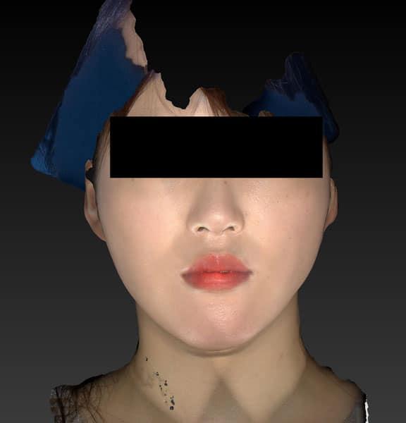 小顔脂肪吸引(ホホ・アゴ下・ほうれい線上) 3ヶ月後のAfterの写真
