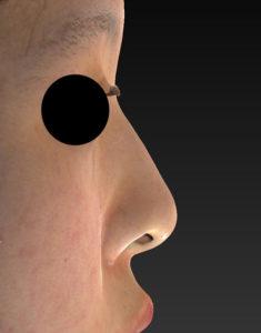右側面手術前-鼻尖縮小+軟骨移植+プロテーゼ-