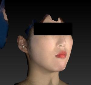 右斜め 3ヶ月後 小顔脂肪吸引(ホホ・あご下・ほうれい線上)