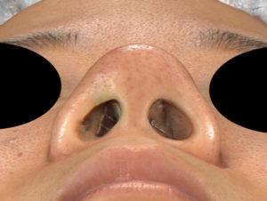 術前 下から 鼻尖縮小(3D法)+軟骨移植