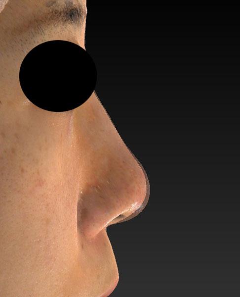 右側面高低変化 鼻尖縮小(3D法)+軟骨移植