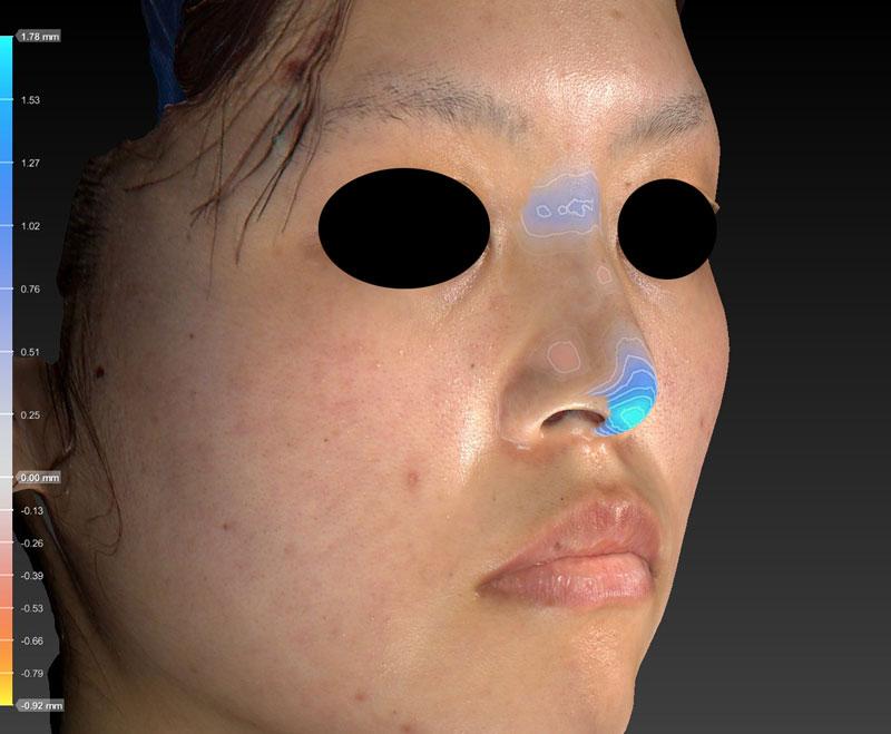 高低変化鼻尖縮小+軟骨移植+プロテーゼ