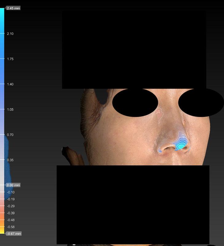 術前後変化カラー 鼻尖縮小(3D法)+軟骨移植